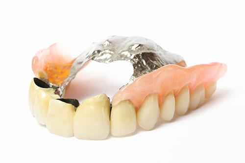金属床義歯(メタルプレートデンチャー)